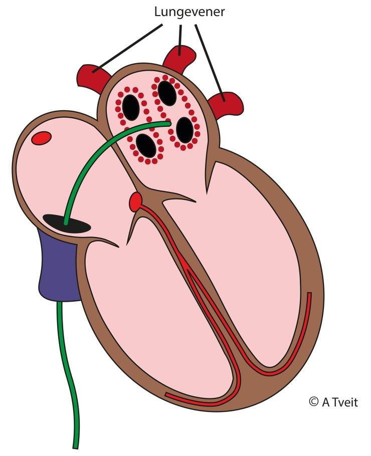 200229 Ablasjon med lungevener
